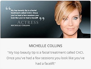 michelle-collins caci facial treatment